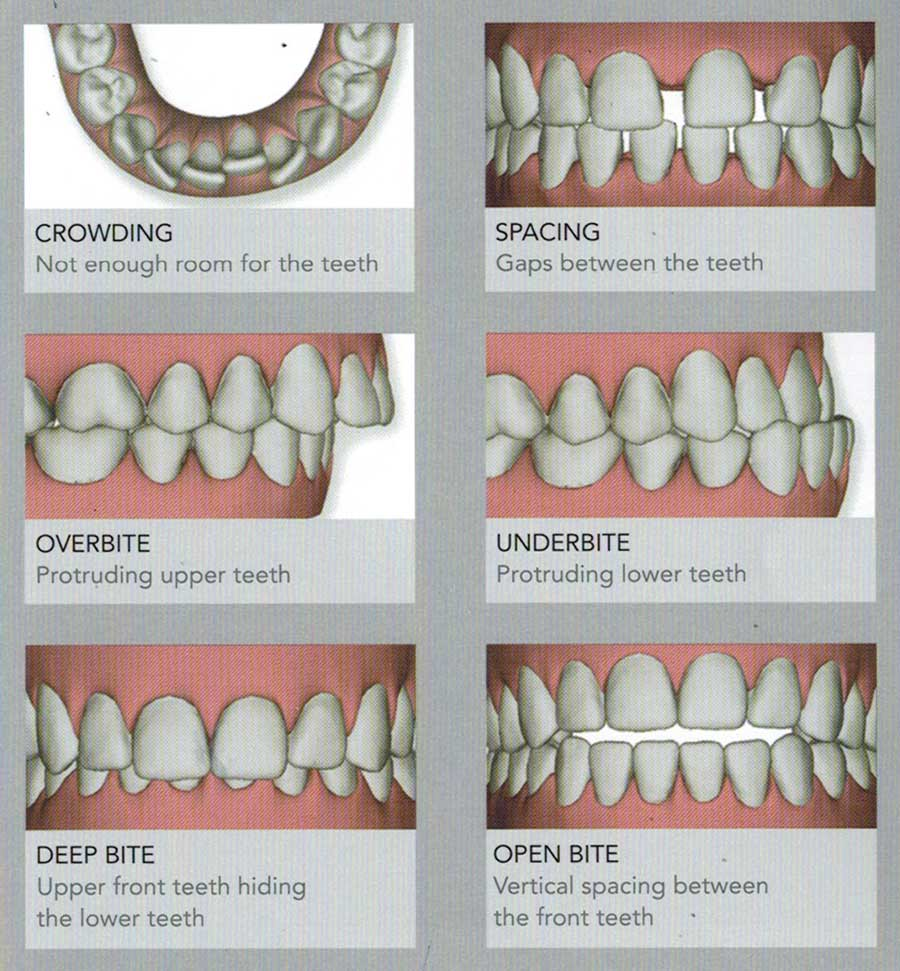 ABS-invisalign
